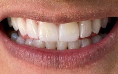 Carillas Dentales y Coronas (Diseño de Sonrisa)